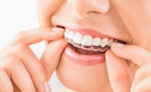 Docteur Garçon Orthodontie Invisible