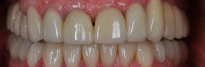 Recouvrement des dents
