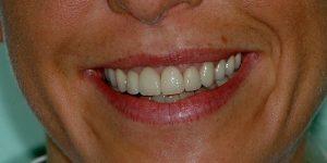 Esthétique du sourire
